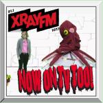 Popcorn- XRAYTV